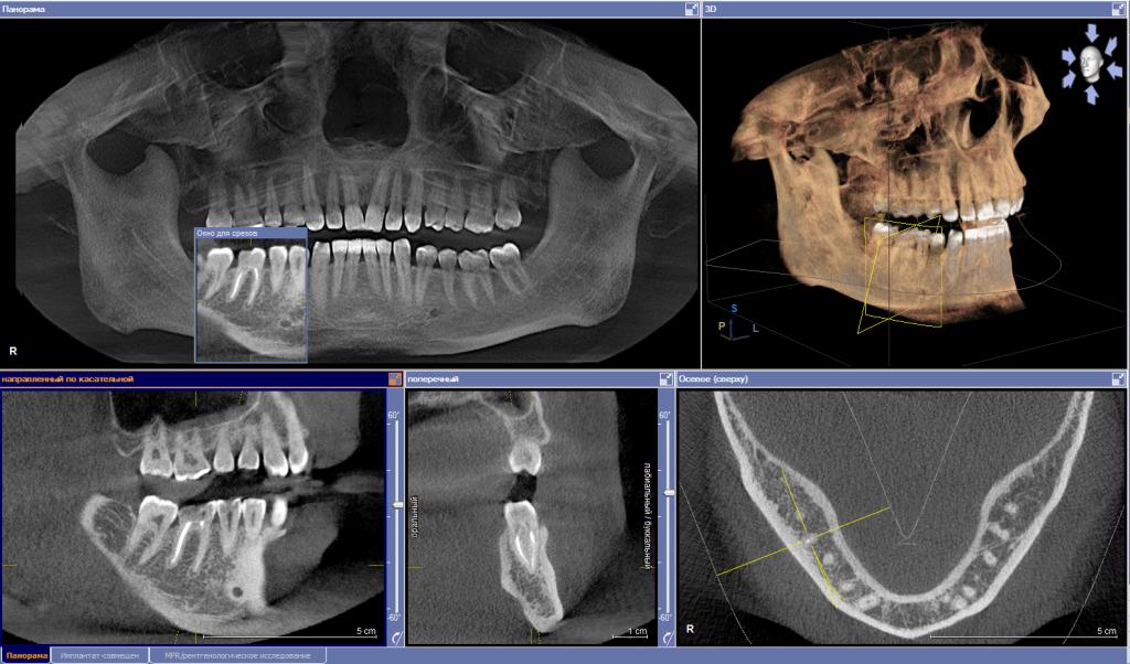 3D панорамный снимок зубов